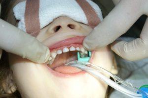 Лечение молочных зубов современными методами