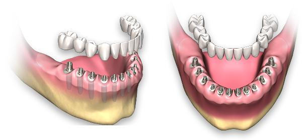 polnaya-implantacia-zubov