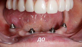 Имплантация зубов после лечения
