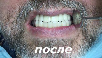 protezirovanie-imolanty-1-posle