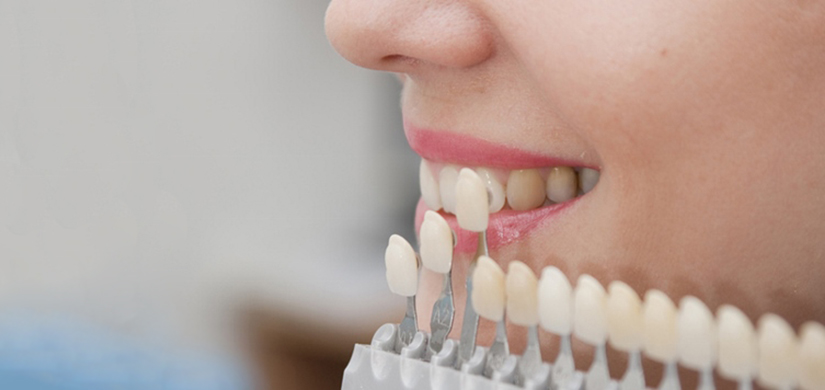 protezirovanie-zubov