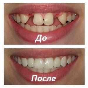Протезирование зубов под наркозом