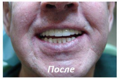 Протезирование зубов в Москве под наркозом
