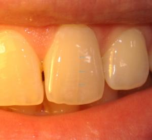 treshhinyi-na-zubnoy